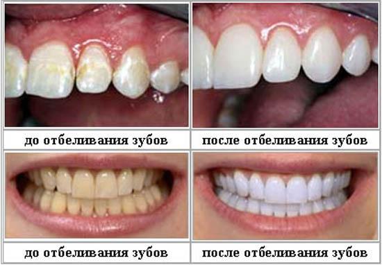Как сделать расцветку зубов