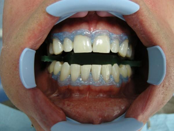 отбеливание зубов zoom 3 противопоказания
