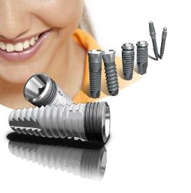 Основные варианты имплантации зубов